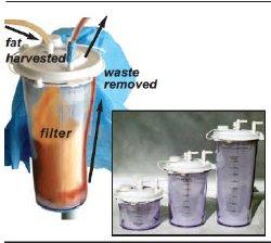 Shippert Medical Technologies 3-TT-FILTRON 2000
