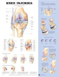 Anatomical Chart Company 9781587797576