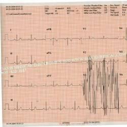 S & W Healthcare 18416-002
